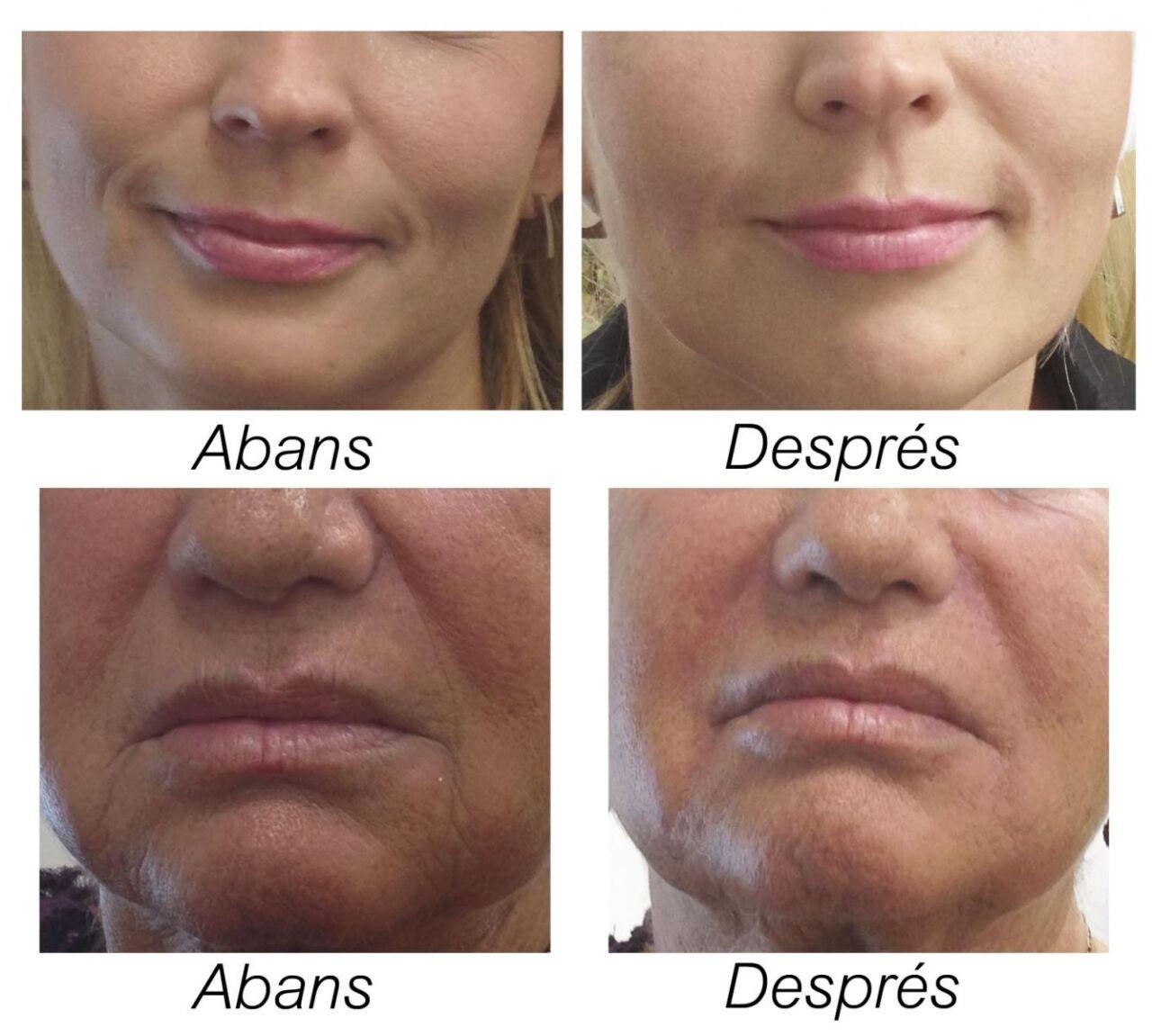 Abans i després del tractament amb àcid hialurònic